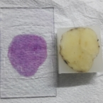 Pathology Case Images (Original Images: Not copied from any book or website)